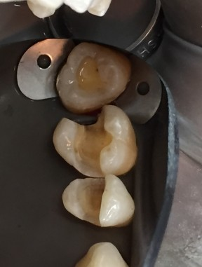 cavity remove