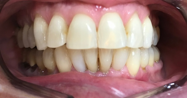 composite veneers in the lower lateral teeth