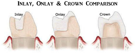 Inlay-Onlay-Crown-Comparison